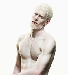 Midget Albinos 61
