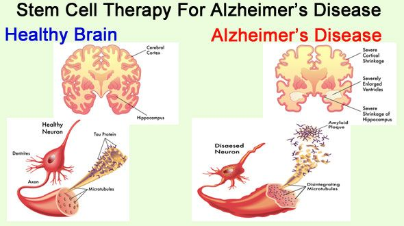 Stem Cell Therapy For Alzheimers Disease Stem Cells