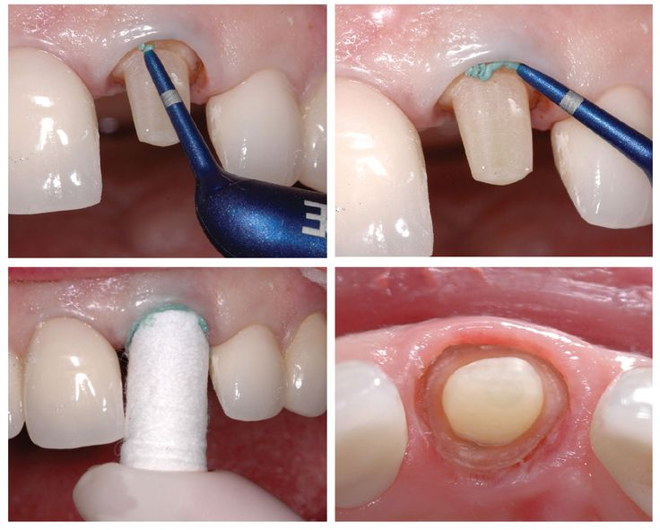 Fundamentals and New Concepts in Impression Taking By Gary Alex Dentaltown Magazine February 2015 http://www.dentaltown.com/Dentaltown/Article.aspx?i=384&aid=5242. Dr. Gary Alex graduated from Tufts University Dental School in 1981 and completes numerous hours of continuing education with an emphasis on occlusion, adhesion, comprehensive dentistry, materials and aesthetics. An international researcher and lecturer #GaryAlex #Dentist #DentaltownMagazine #DentaltownWebsite