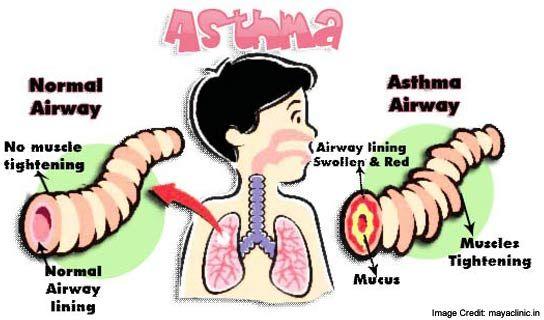 Omega-3 Supplements Prevent Asthma in Kids, Study Finds https://www.consumerhealthdigest.com/health-news/omega-3-prevent-kids-asthma.html