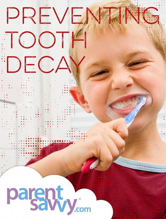 Pin On Tooth Decay Oral Hygiene