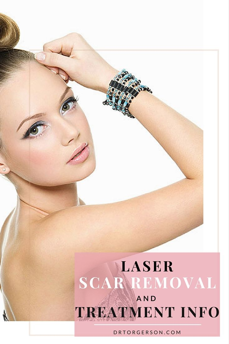 Laser Scar Removal and Treatment Info. There is good news for anyone who has #facial #scars and is looking for a treatment option to remove the scars!  You no longer have to put up with them the rest of your life! http://drtorgerson.com/non-surgical-procedures/laser-treatments-toronto/laser-scar-removal-and-treatment-info/ #skincare   #skincaretips   #rejuvenation   #laser   #lasertreatment   #laserscarremoval