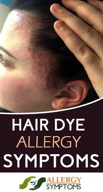 Hair Dye Allergy Symptoms #HairDyeAllergy http://allergy-symptoms.org/hair-dye-allergy-symptoms/