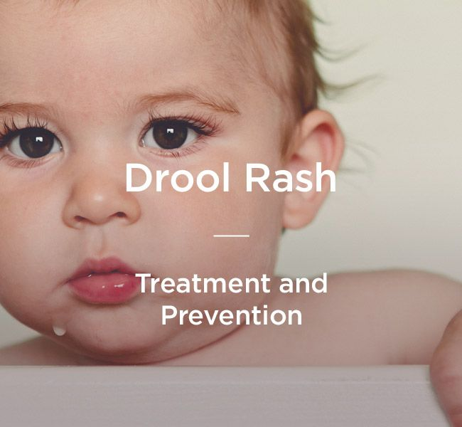Drool rash is a common irritation found in babies and toddlers who break out around the wet parts of their chin and mouth. Here's how to prevent and cure it.