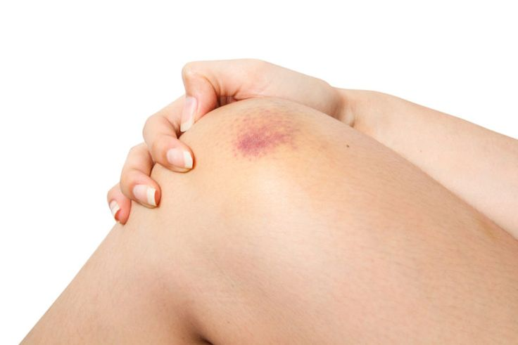 8 Natural Remedies For Healing Bruises Fast!