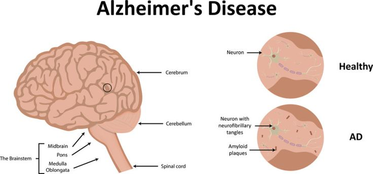 NEW ALZHEIMER'S TREATMENT FULLY RESTORES MEMORY FUNCTION HEALTH & LONGEVITY RESEARCH SCIENCE