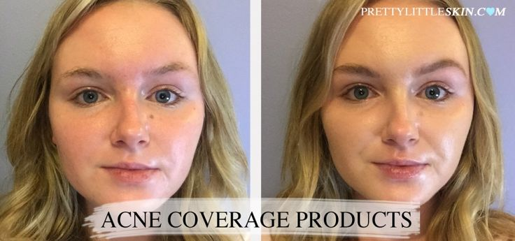 17 best ideas about covering acne on pinterest how to apply makeup applying makeup and makeup. Black Bedroom Furniture Sets. Home Design Ideas