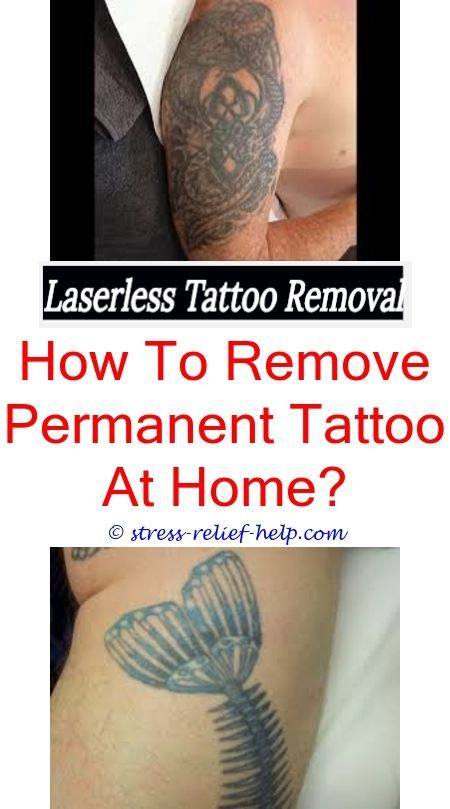 Did deepika padukone get her tattoo removed.How much does laser ...