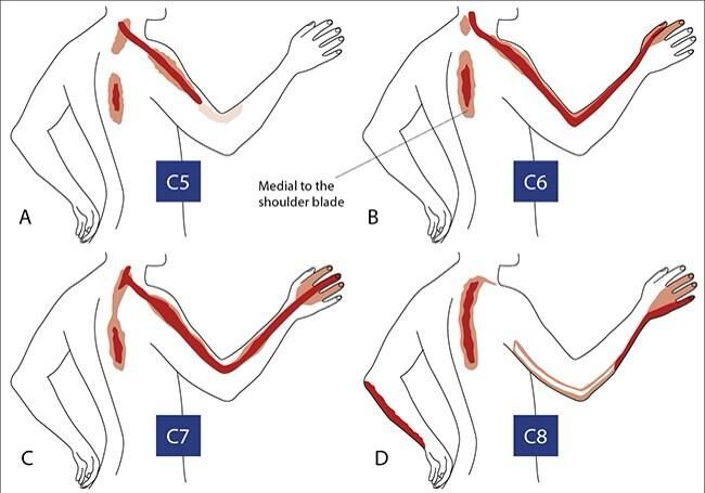 referred neck pain patterns c7 diagram