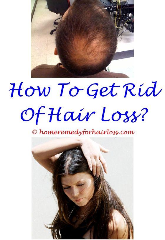 11 best Hypothyroidism Hair Loss images on Pinterest | Grow hair ...