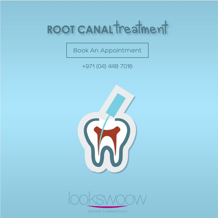 how to avoid root canal
