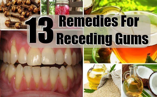 Receding Gums5 Jpg 650 215 400 Pixels Health Tips Remedies