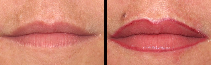 Before and after picture of lip liner tattooed on after
