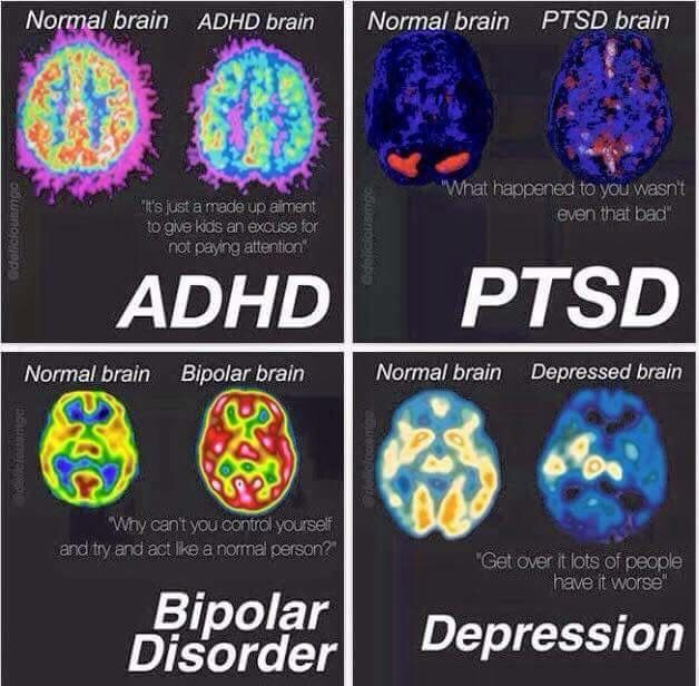 Normal Brains vs. Those With Disorders