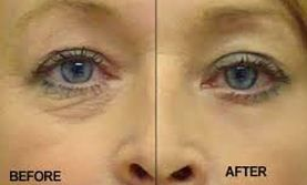 before and after Preparation H use