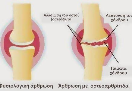 Πυρφορος Ελλην: Μπορεί να θεραπεύσει τους πόνους στις αρθρώσεις σας σε 7 μόλις μέρες ! Μια συνταγή θαύμα