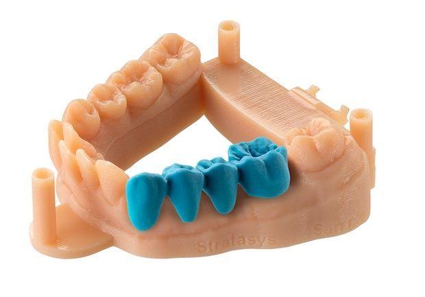 51 besten Dental 3D Printing Bilder auf Pinterest | Zähne, Dental ...