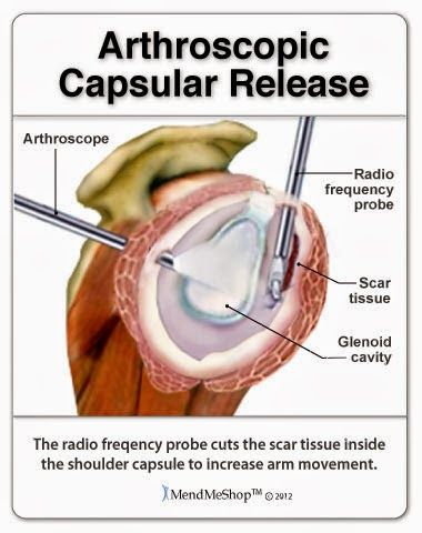 An Arthroscopic Or Open Capsular Release Surgery Will