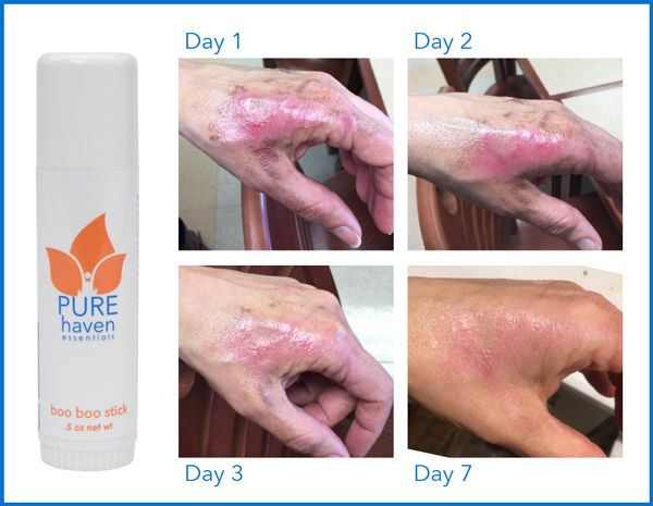 PHE's boo boo stick heals bug bites, rashes, cuts, burns, aches and more!