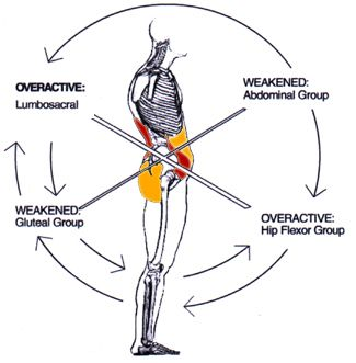 Great diagram explaining LBP / pelvic tilt
