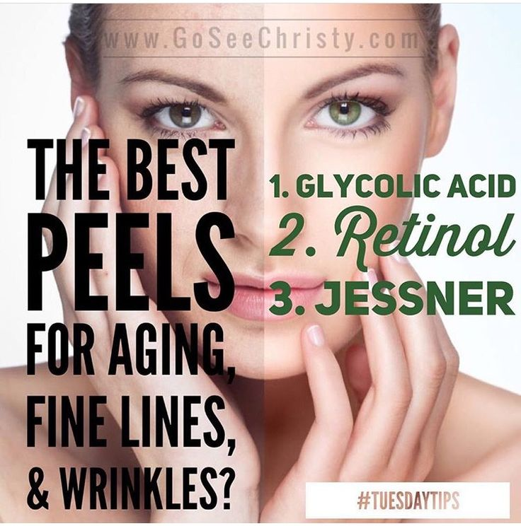 What are the BEST peels for aging skin, fine lines, and wrinkles? Go for a Glycolic Acid peel, Retinol peel, or Jessner peel. Peels are also ideal during the Winter months! ❄️