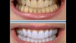 denti bianchi - YouTube