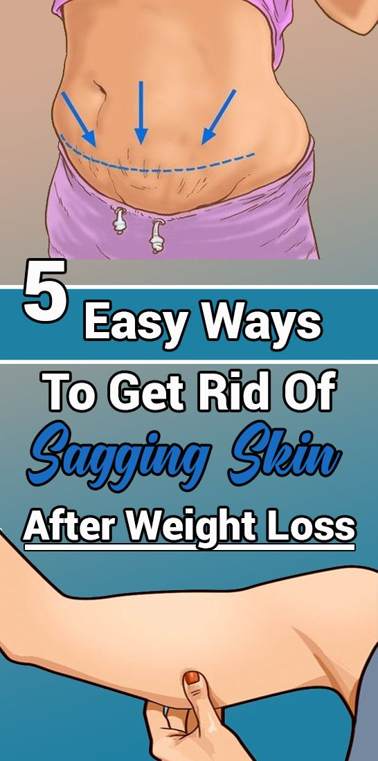 5 Easy Ways To Get Rid Of Sagging Skin After Weight Loss