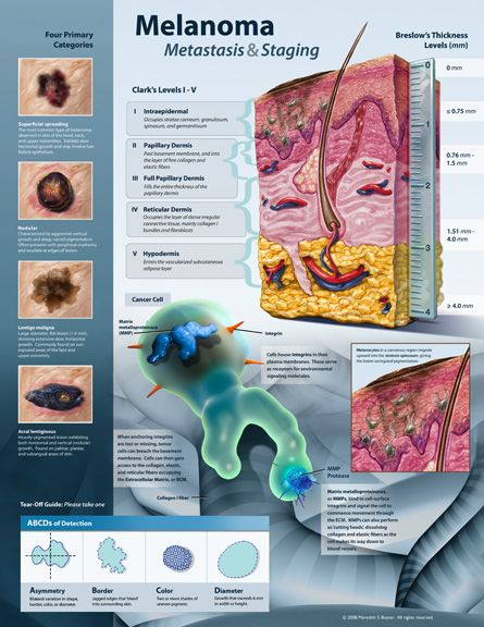 Information about Melanoma and lymph Node Involvement  http://www.skincancer.org/skin-cancer-information/melanoma/the-stages-of-melanoma/lymph-node-involvement