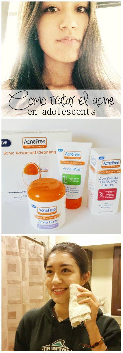 Como tratar el acne en adolescentes #acnefree123 @THEBBTaina  AD
