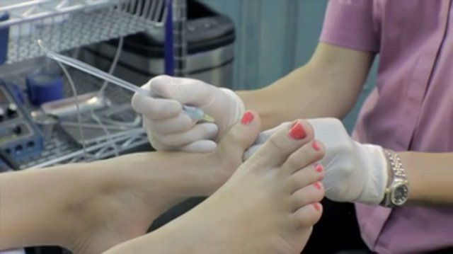 Wand Painless Injection System - Chiropodist Marz Hardy -Toronto, ON Chiropodist Marz Hardy of Academy Foot and Orthotic Clinics the wand, which is a painless computerized injection system for all our surgical patients. http://www.academyclinics.com