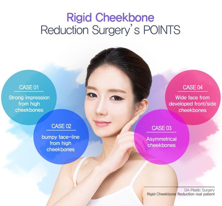 DA plastic surgery and dermotology located in Gangnam. More info: en.daprs.com Enquiry/make a reservation: info-en@daprs.com #daplsticsurgery #daprs #plasticsurgery #cosmeticsurgery #beauty #korea #model #damodel #facialcontouring #DA #vline #facecontourig #koreanplasticsurgery #jawsurgery #plasticsurgeryinkorea #koreabeauty #koreabeauty #gangnam #gangnamplasticsurgery