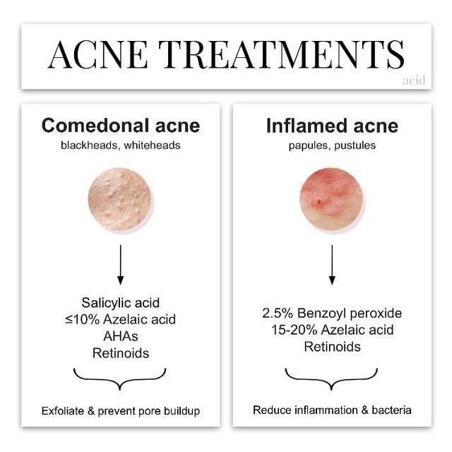 a helpful diagram : vindicta in 2020 | acne treatment, acne treatment  overnight, back acne treatment  pinterest