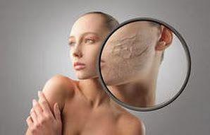 календула, картофель, маска для сухой кожи лица, молоко, очень сухая кожа лица, сухая кожа лица, сухая кожа лица что делать, уход за сухой кожей лица