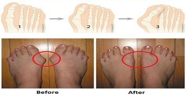 A bunion is the result of a deformity in the joint of the big toe, which forms as a result of dislocation of the big toe bone. Many factors contribute for this condition and the most common include tight footwear, a weak or poor foot structure, and rheumatoid arthritis. For some people, bunions run in the family. This enlargement of the big toe joint causes inflammation and pain due to the fact that much of your weight while walking is carried by this joint. In time, the joint may harden and…