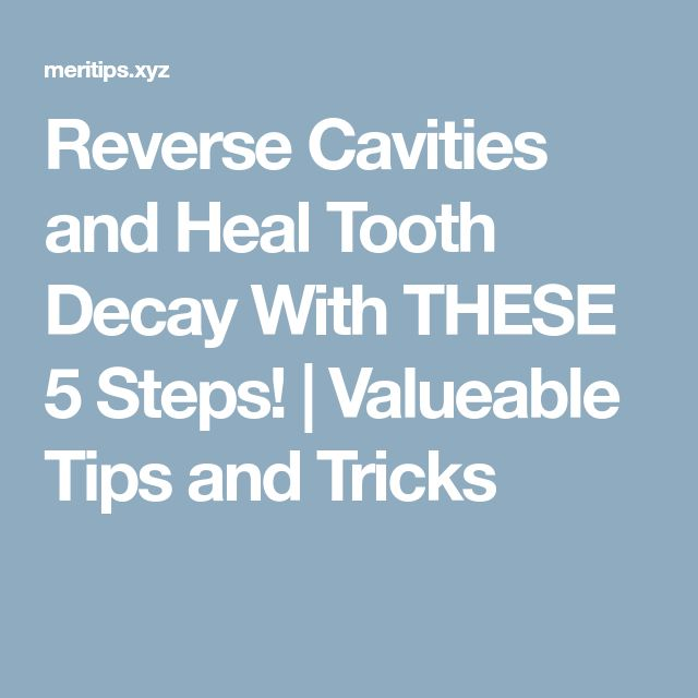 Reverse Cavities and Heal Tooth Decay With THESE 5 Steps! | Valueable Tips and Tricks