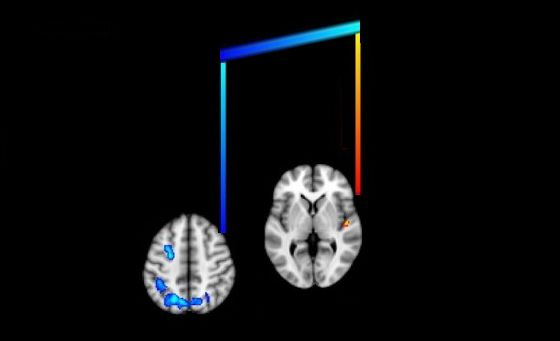The brain and music: McGill team graphs regions of the brain responsible for music training and individual skill