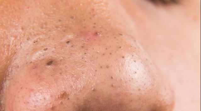 How To Take Care Of Pimples Naturally