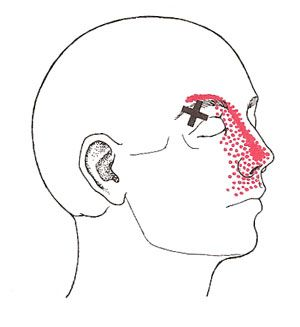 Drysdale Osteopathy, Osteopathy, Sinusitis, Sinus Pain, Trigger Points