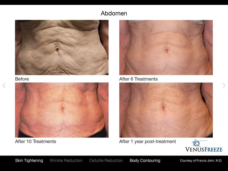 See how Venus Freeze works for Skin Tightening & Body contouring. Experience the best Results at your practice with Venus Freeze visit http://bit.ly/1nq5N1y #VenusBeauty #VenusFreeze