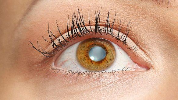التراخوما Trachoma الرمد الحبيبي أعراضه ومسبباته مع اهم طرق علاجه
