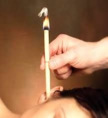 <p>Cone+Hindu+ou+Cone+Chinês+sua+aplicação+no+ouvido+limpa+a+cera+acumulada,+melhora+a+dor,+a+otite,+zumbidos+e+a+sensação+de+perda+da+audição++Cone+Hindu+ou+Cone+Chinês++Benefícios+Terapêuticos+do+Cone+Hindu:+Acalma+o+sistema+nervoso.+•+Ativa+a+circulação+nos+ouvidos.+•+Aumento+…</p>