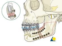Orthognathic Surgery: BSSO - Bilateral sagittal split osteotomy (Obwegeser/Dal Pont)