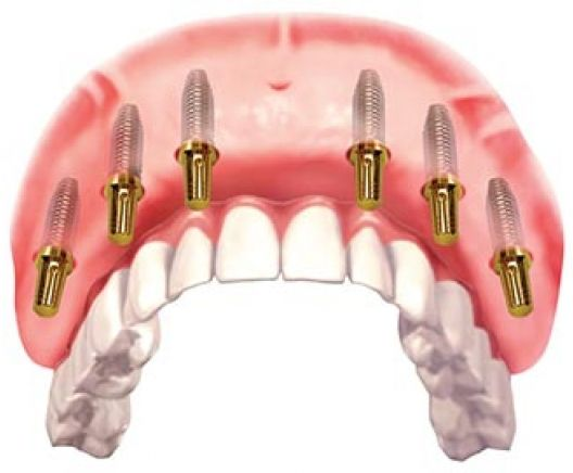 Single tooth implants from only $2,999!
