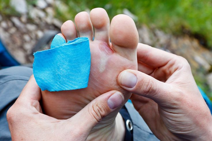 The Hiker's Guide to Blisters and Hotspots — The Mountains Are Calling — Medium