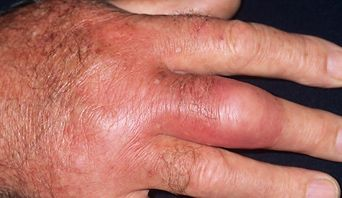 Cellulitis - infection of the deep layers of skin