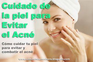 Como Combatir el Acné Naturalmente: Cuidado de la piel para evitar el acné