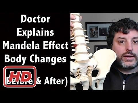 Doctor Explains Mandela Effect Body Changes - Compares Body Then to Now ...