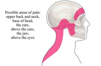 Tension headaches are believed to be the most common type of headache. The primary symptom of this type of headache is a tight, gripping pain on the top of the head that sometimes spreads to the back of the neck. In addition to the feeling of constriction, sufferers may also feel a stinging, tingling, or burning sensation on the skin of the head and neck.