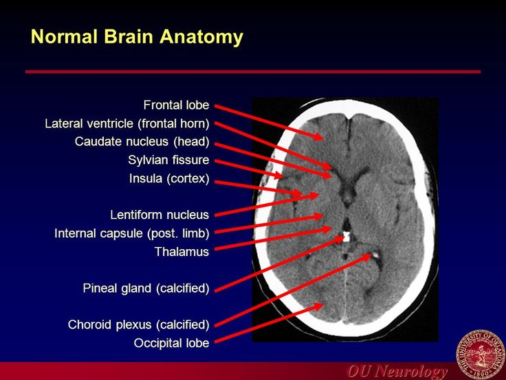 Axial View Of A Head Computed Tomography Ct Scan Of Pineal Gland