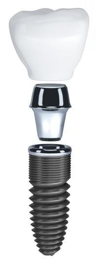 This is what a dental implant looks like #dentistry #teeth